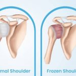 How to cure Frozen Shoulder pain in Work Life?